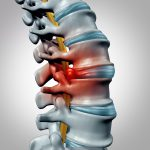 Osteopathy and Physiotherapy
